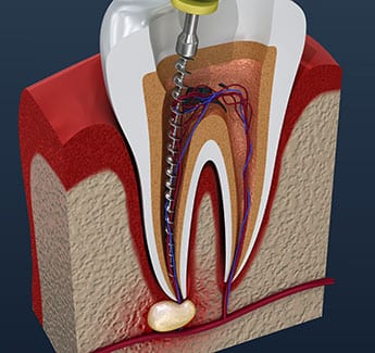 treating root canal in o'fallon illinois