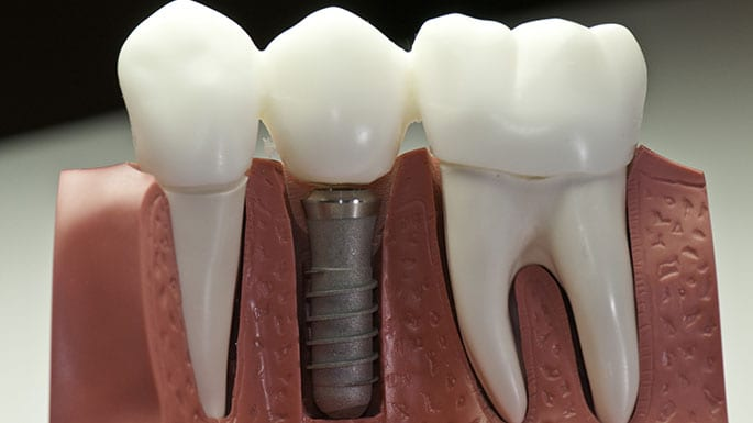 cosmetic dentistry scott air force base il